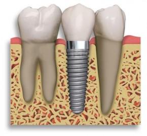 Gydymas implantais